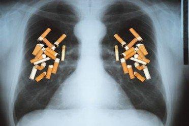 Finalmente risarcibile il danno esistenziale da fumo passivo