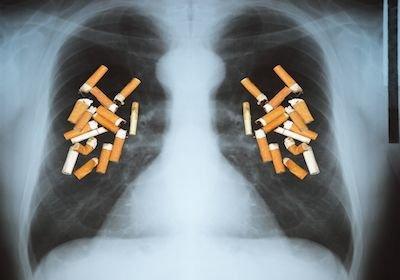 Fumo passivo: l'azienda risarcisce il danno al dipendente