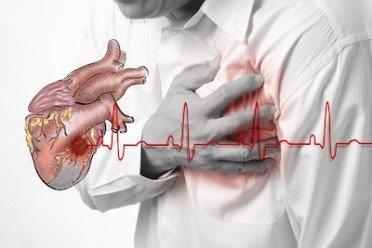 Stress da lavoro e infarto: risarcimento assicurato