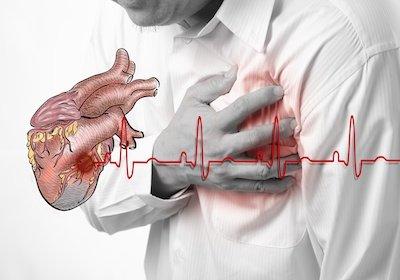 I diritti di chi ha avuto un infarto