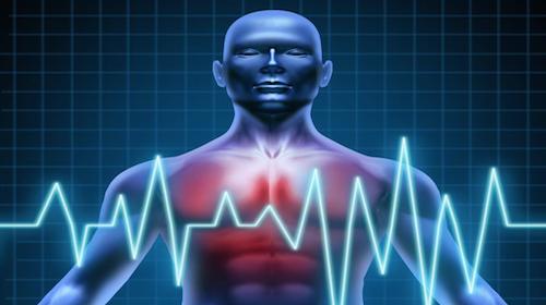 Eccesso di velocità: la scusa della colica renale bocciata dalla Cassazione