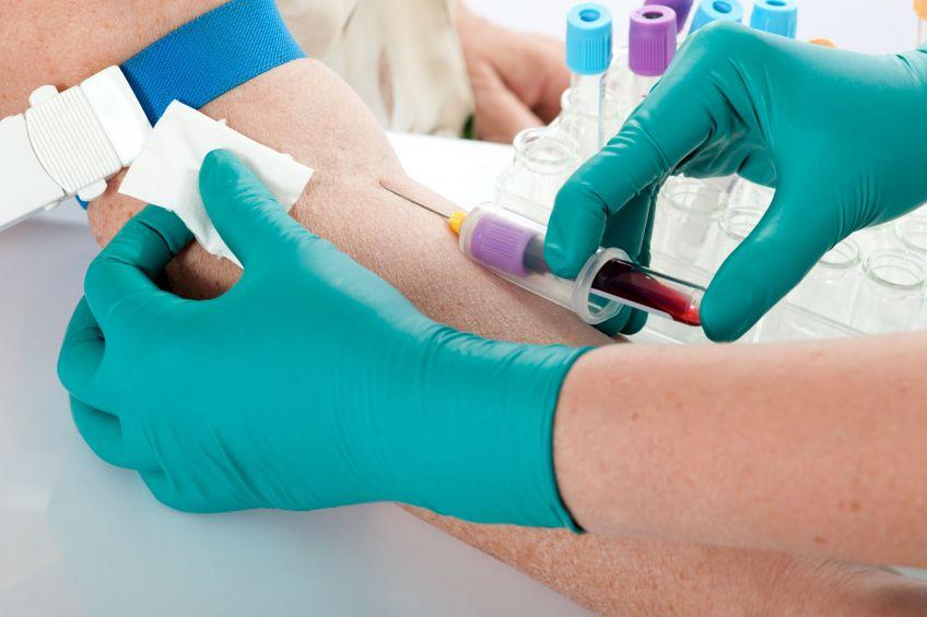 Ebola: scopri se nella tua città qualcuno ha il virus