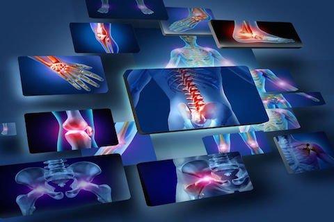 Basta la radiografia per il risarcimento da colpo di frusta