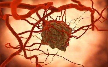 Assicurazione: la recidiva del tumore va risarcita