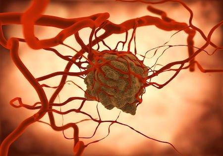 Tumore al seno: diritti e agevolazioni