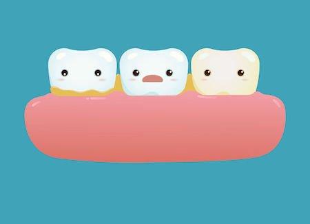 Detrazione della fattura del dentista