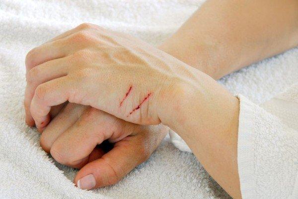 Il graffio non è lesione