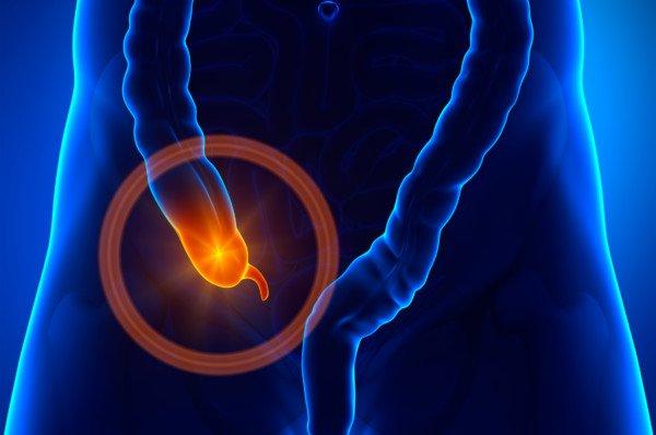 Appendicite non diagnosticata in tempo: diritti del paziente