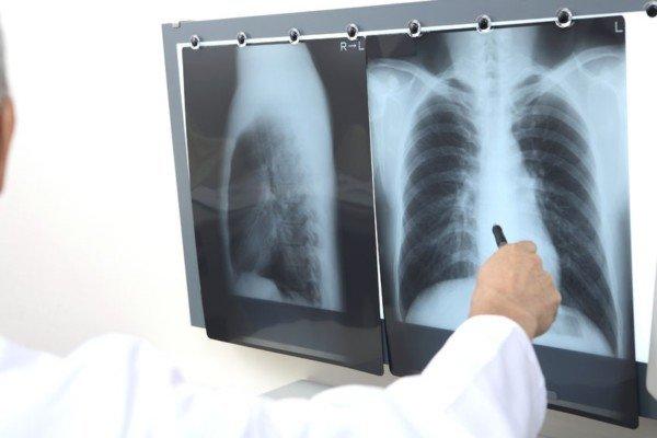I diritti di chi deve fare una radiografia