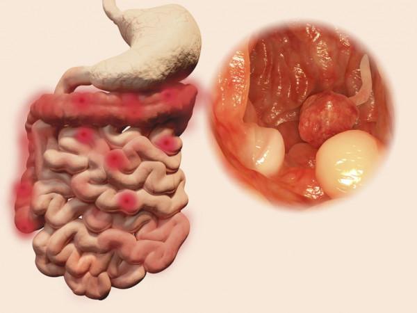 I diritti di chi ha polipi intestinali
