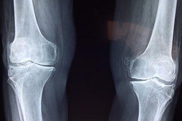 Invalidità artrosi: come ottenerla
