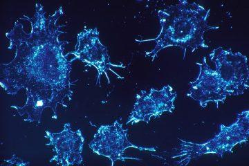 Sindrome mielodisplastica: come riconoscerla