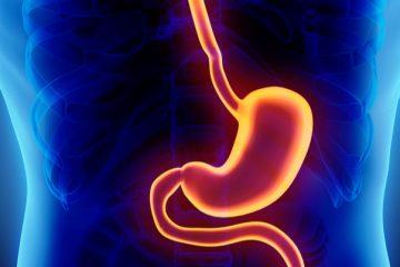 Malattia da reflusso gastroesofageo: cause, sintomi e rimedi