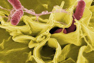 Malattie trasmesse dagli alimenti: quali sono?