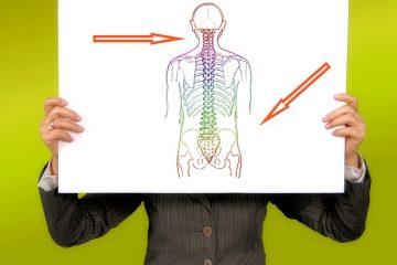 Scoliosi: cosa fare
