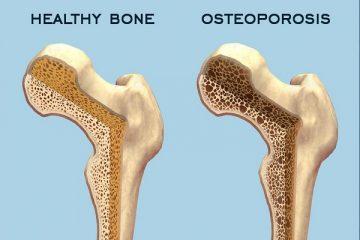 Osteoporosi: lo smog fa male alle ossa?