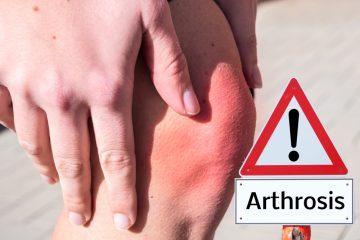 Artrosi: cause, prevenzione e cura