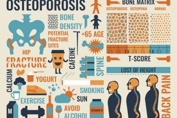 Osteoporosi: diagnosi e cura