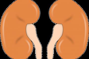 Colica renale: ultime sentenze