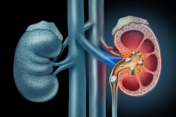esempi di diete per pazienti con rene
