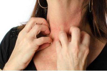 Invalidità per dermatite atopica