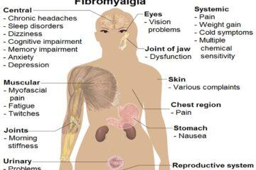Invalidità fibromialgia