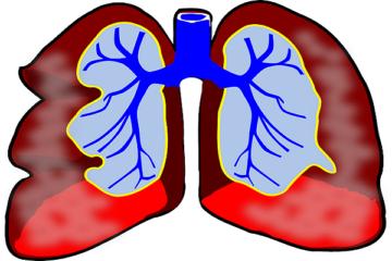 Come si cura la bronchite