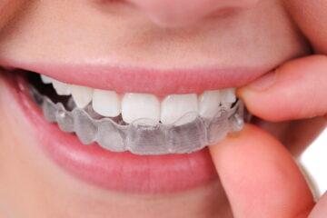 Apparecchi sbiancanti per denti: gravi rischi per la salute