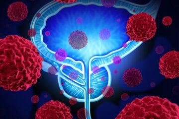 Problemi alla prostata: tutto ciò che ancora non sai