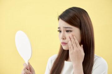 Come evitare acne e brufoli