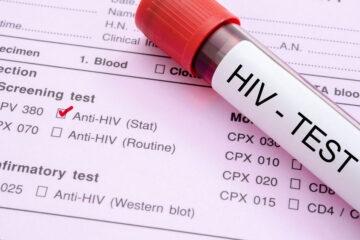 Aids: quello che i giovani ancora non sanno