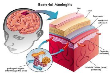 Meningite: ultime sentenze