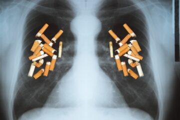 Coronavirus: aumenta il pericolo per i fumatori