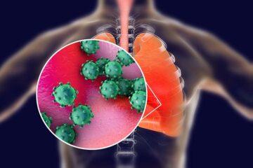 Coronavirus: uno studio rivela la causa della trombosi