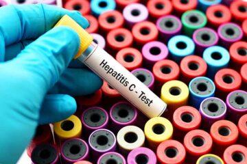 Epatite C, la migliore strategia per combatterla