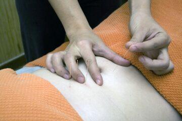 Agopuntura: ultime sentenze