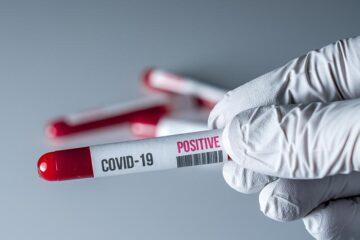 Scuola: 2 milioni di test sierologici alla riapertura