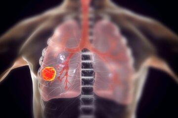 Arriva un'importante scoperta sul tumore ai polmoni