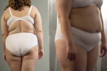 Deridere una persona per il suo aspetto fisico: cosa si rischia