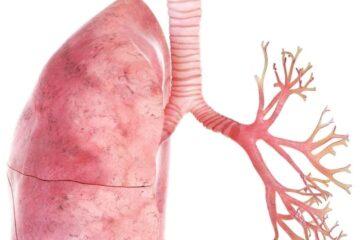 Sintomi bronchiolite