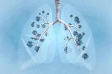 Covid: ecco le conseguenze sui polmoni