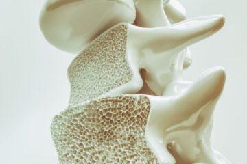 Osteoporosi, in arrivo un farmaco più efficace