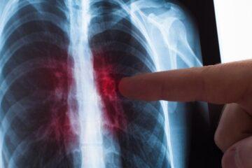 Tumore al polmone: in arrivo nuova terapia