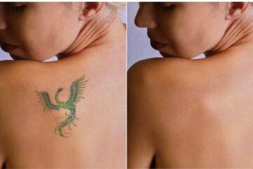 Danno da rimozione di tatuaggio